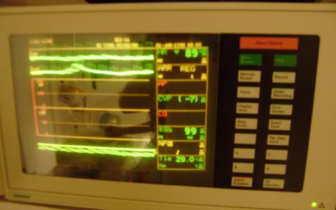 Pacientský monitor sledující průběh anestezie