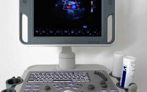 Digitální sono s dotykovým displejem
